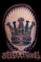 crown for tooth by gil893tattoos