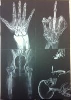 X-ray by MoishaCampbell