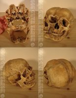 Conjoined Human Skull 2 by dreggs88