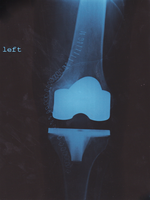 Post OP Knee X-Ray by AGP12