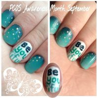 PCOS awareness by wittlecabbage