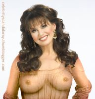 Marie Osmond X-Ray by CelebrityX-Ray