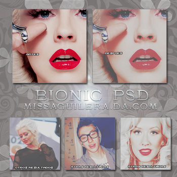 +BionicPSD by MissAguilera