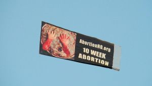 10 Week Abortion by Miss-Madonna