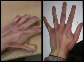 Zombie Hand by AmmoniteFiction