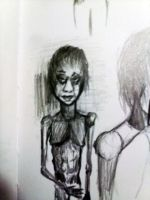 Anorexic by mannicken