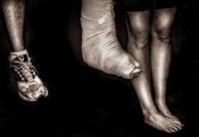 Differently Abled by pmaeck