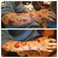 Zombie Arm by Anesthetic-X