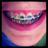 My rainbow braces by Dreamerboy5
