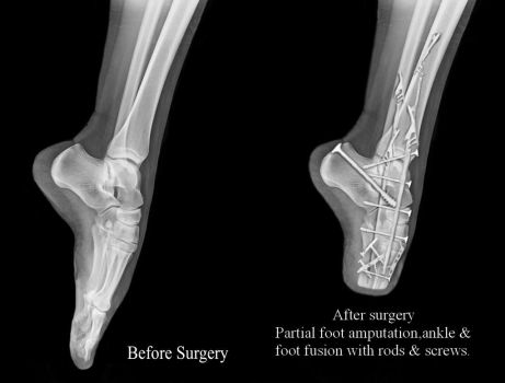 Before  After foot binding xray by LIMBLESSGIRLLACY
