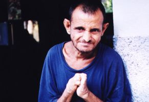 Leprosy Patient by copywritrix