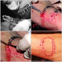 Bite Scarification (peeling) by TheChristOff