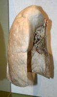 Denver Museum Anatomy Lung 231 by Falln-Stock