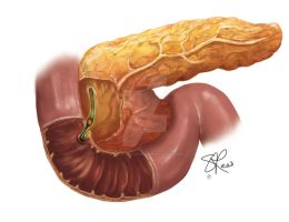 Inflamed Pancreas by cheery-macaroon
