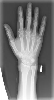 My Hand: X-Ray by kalany