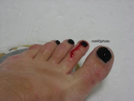 Toe Bleed 05 by not40
