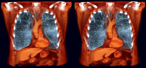 COPD 1a by voxel123