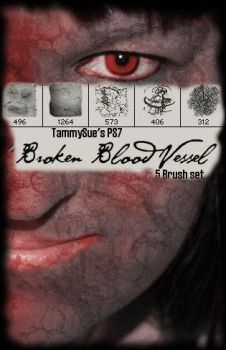 BrokenBloodVessel by TammySue by The-Stock-Hospital