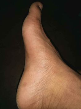 A nice side view of his foot by Tinybr
