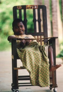 Malagasy Kid in Lepro Hospital by nikonforever