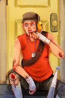 You should see the other guy by Avibroso