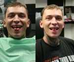 Tongue splitting 15 by 2Face-Tattoo