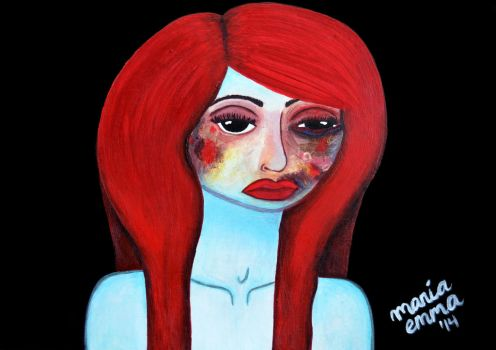 The girl with bruises by shehateshim