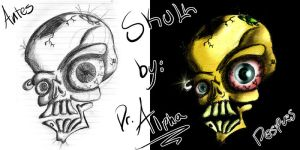 Skull after nBefore by DrAlpha