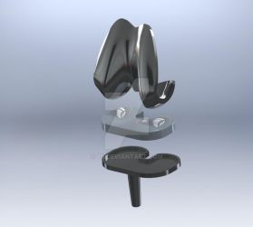 Total Knee Implant by yii