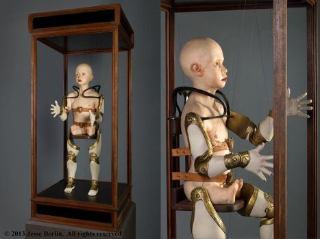 Phocomelic Child With Prosthetic Limb Apparatus by JesseBerlin