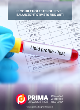 Lipid Profile Test in Bangalore by primadiagnostic
