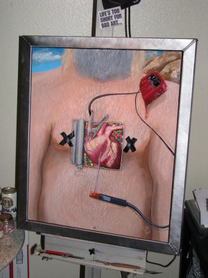 Heart Attack Man - Painting by suhleap