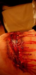 CSI Photo - Special Effects Makeup by Feeorin215