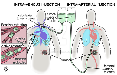 Intra-arterial immunotherapy by Kezhound