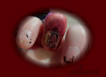 busted zombie nail 2 by GothicRavenMidnight