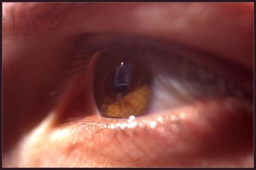 Extra Lense by Serinanth