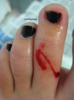 Toe Bleed 07 by not40