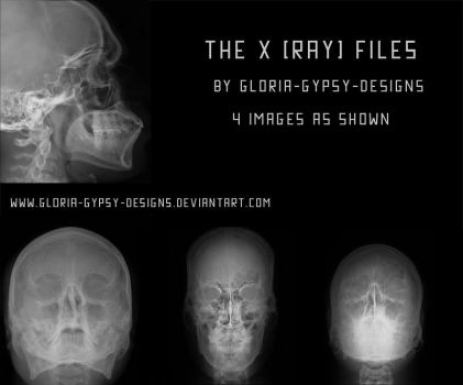 The Xray Files by Gloria-Gypsy-Designs