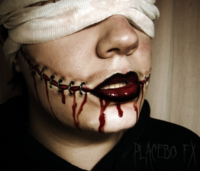 Misery by PlaceboFX
