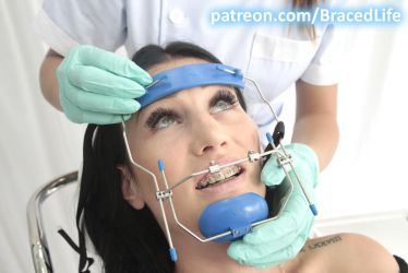 Kate's Orthodontic Headgear Facemask by MedicBrace