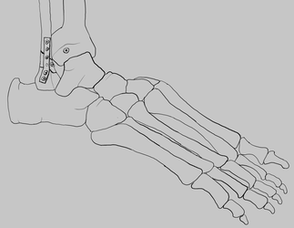 Ankle by tsfhaines