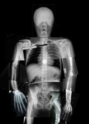 X-Ray Collage by Facial-Tic