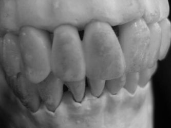 boney teeth by psychopunk5000