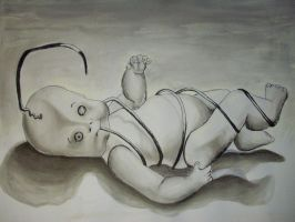 Abortion by beckuh