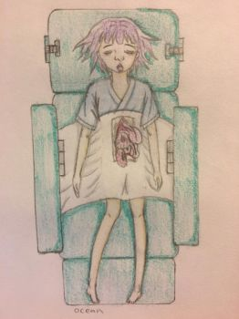 Stomach Surgery by oceangirl1