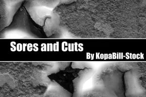 Sores and Cuts Brushes by KopaBill-Stock
