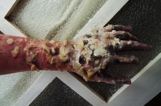 Decaying Arm by SometimesAliceFX