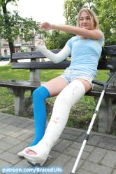 Betty's Shoulder Spica and Long Leg Walking Cast 5 by MedicBrace