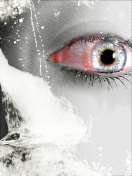 My eye when i had an infection by SarahBeth1608
