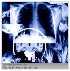 Dem Bones by Scully7491